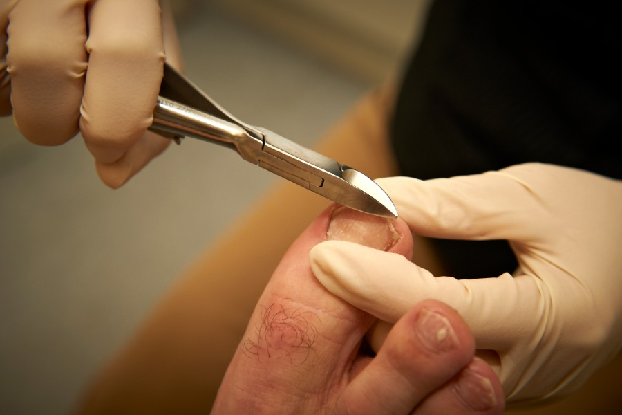 Nail and skin management - ingrown toenails